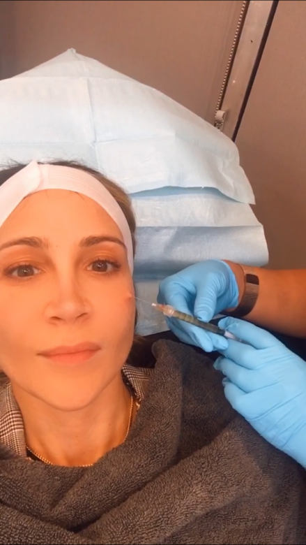 Microneedling: which is better PRP or PRF